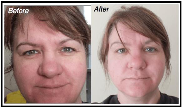 Tretinoin soap benefits : Sevrage prozac avis