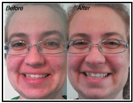 DH-Nerium-Testing-Before-After