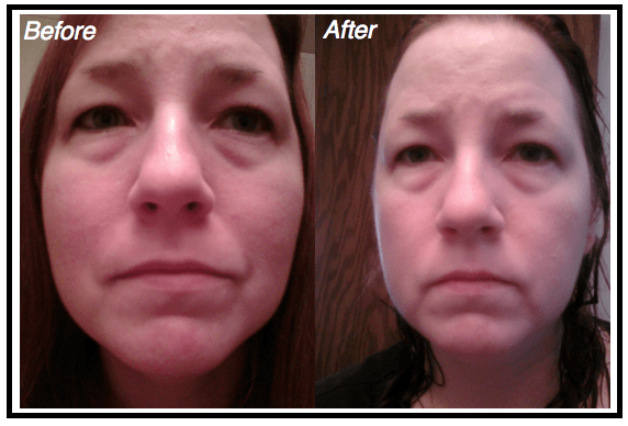 MH-Nerium-Testing-Before-After-1 CelebrateWomanToday.com