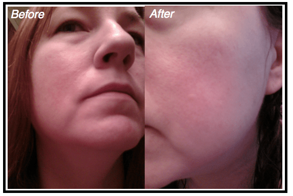 MH-Nerium-Testing-Before-After-2 CelebrateWomanToday.com