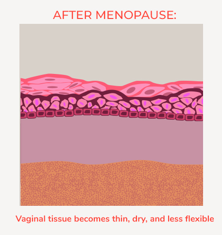 Vulvar Vaginal Atrophy or VVA affects women in menopause. This is the look of Vaginal tissue after menopause.