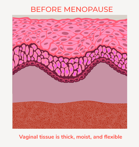 Vulvar Vaginal Atrophy or VVA affects women in menopause. This is the look of Vaginal tissue before menopause.